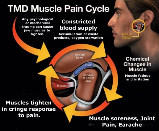 TMJ PAIN CYCLE ILLUSTRATION